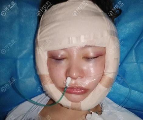 在重庆华美做颧骨手术当天照片