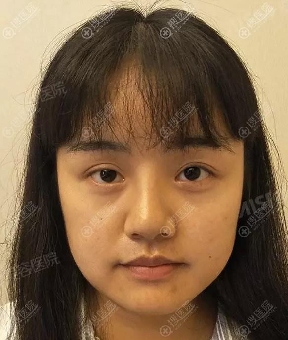 在爱思特做复合改脸型手术前