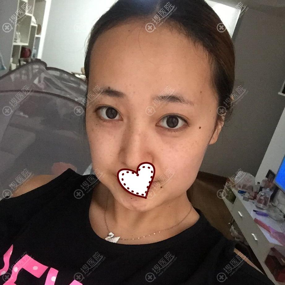 湘潭雅美注射瘦脸针术前照片