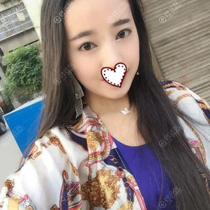湘潭雅美注射瘦脸针一个月效果图