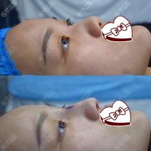 西安画美鼻综合手术中案例图