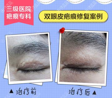 广药三院巫尾英双眼皮疤痕修复案例效果对比图
