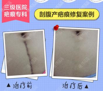 广药三院剖腹产疤痕祛除案例效果图