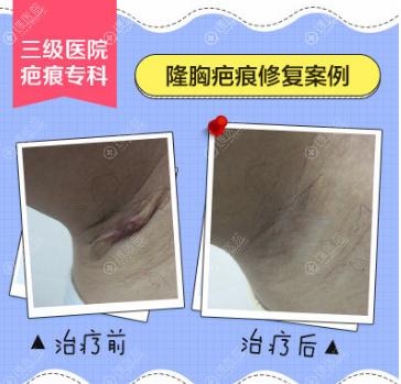 广药三院巫尾英隆胸疤痕修复真人案例