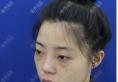 听说吉林长春国健医美是正规医院后找吕启凤做了双眼皮和隆鼻