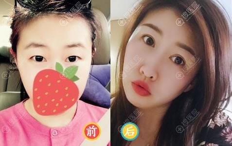 学生在北京美莱做双眼皮开眼角案例