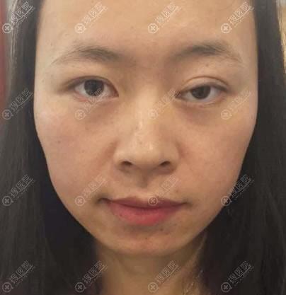 找北京百达丽王维做眼睑下垂矫正前