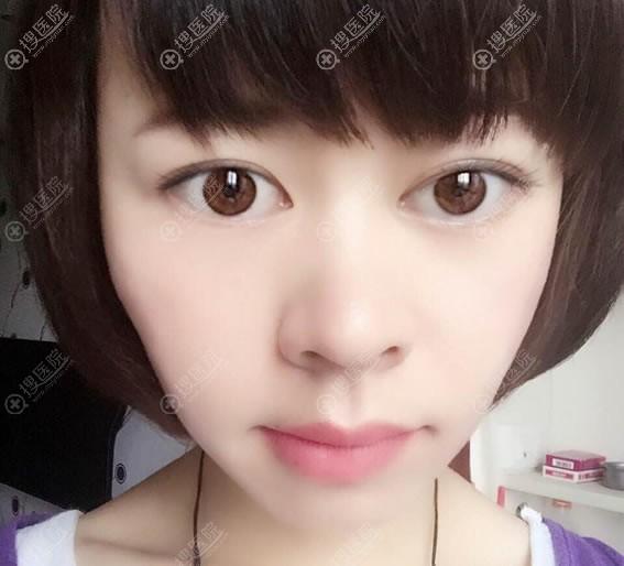 北京百达丽王维双眼皮修复案例