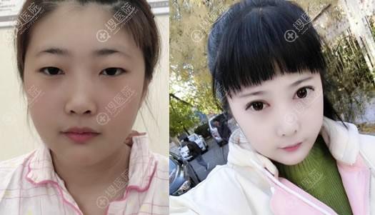 北京华韩李鹏超为学生做双眼皮开眼角案例
