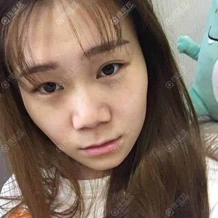 在北京长虹医院做隆鼻手术前