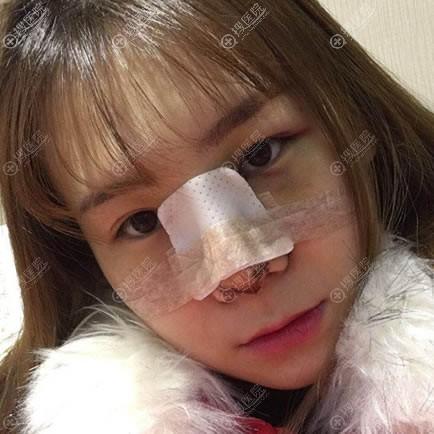 做完鼻综合隆鼻2天后恢复照