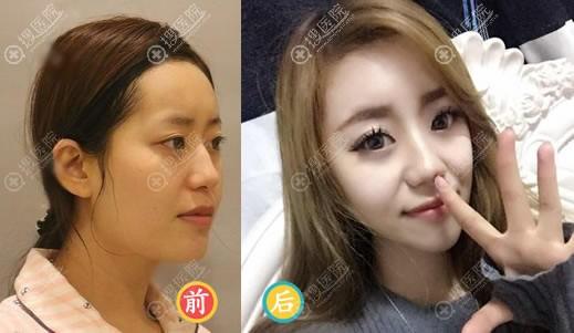 北京玉之光张红芳隆鼻案例对比图