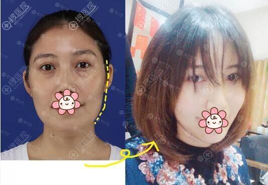 重庆华美陈凯自体脂肪面部填充术前术后对比