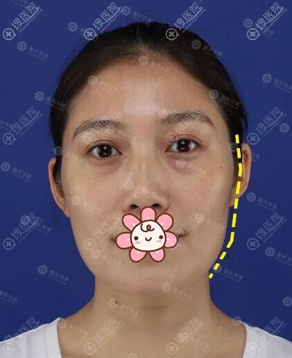自体脂肪面部填充术前照片