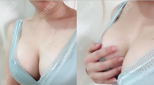 成都军大假体隆胸术后15天恢复效果图