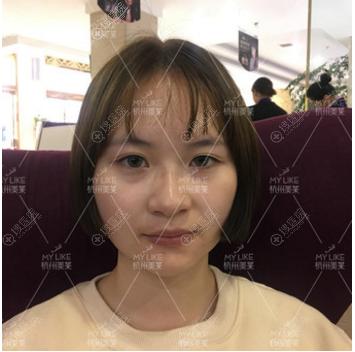 杭州美莱双眼皮案例术前照片