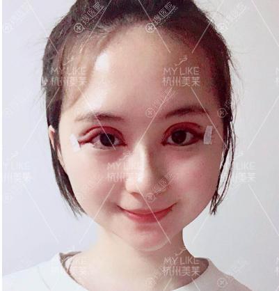 杭州美莱双眼皮术后效果图