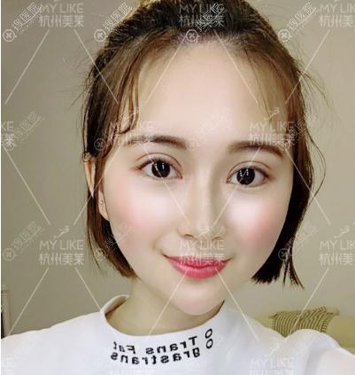 杭州美莱韩超双眼皮术后15天自拍