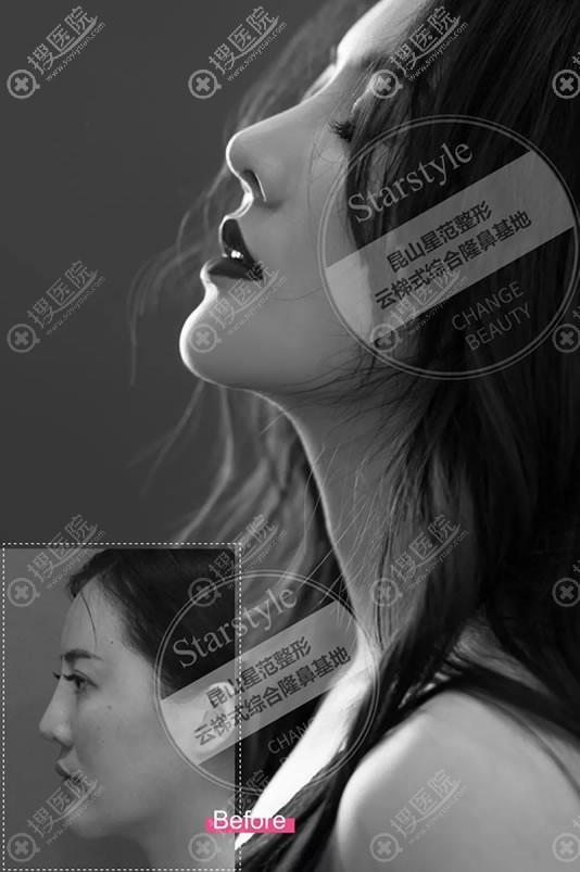 昆山星范张多辉鼻综合隆鼻案例