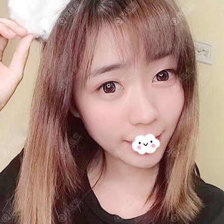 广州曙光注射瘦脸针术后15天真实照片