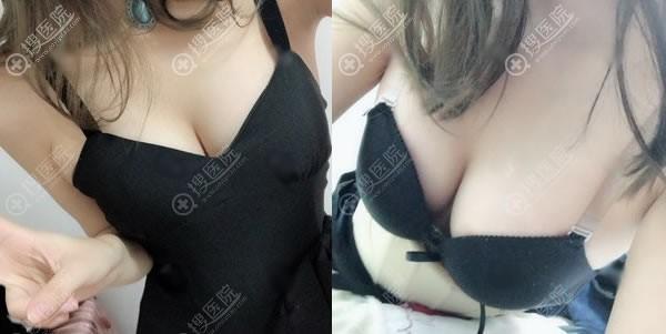 在重庆艺星做完脂肪丰胸20天后