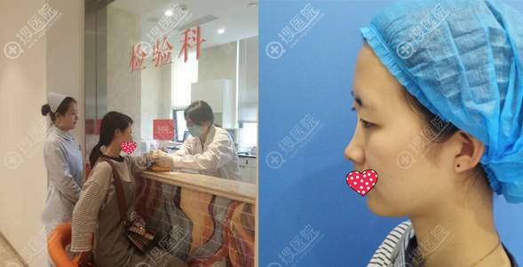 南京美贝尔鼻综合术前照片
