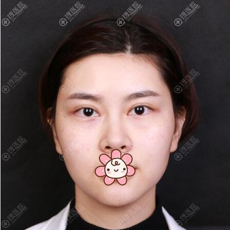 面部埋线提升术前照片