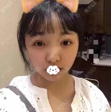 在重庆华美做鼻子前的照片