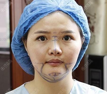徐和林设计的下颌角和隆鼻方案
