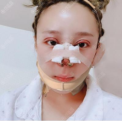 杭州时光双眼皮隆鼻下颌角磨骨术后效果图