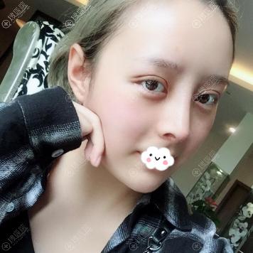杭州时光做双眼皮隆鼻下颌角磨骨怎么样