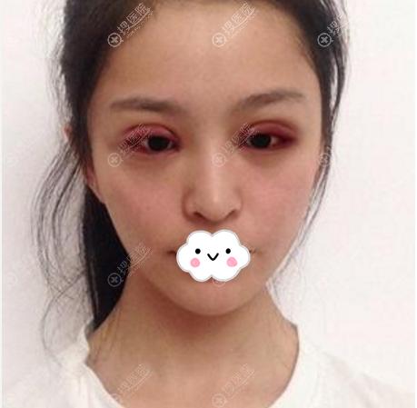 杭州时光双眼皮案例术后效果图