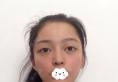 我的全切双眼皮是去年暑假在杭州时光整形医院找黄良飞医生做的