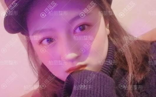 北京柏丽于波双眼皮案例6月效果