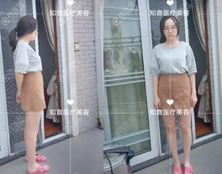 在北京知音做大腿抽脂手术前