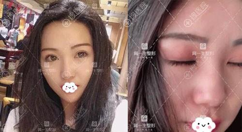 宝鸡高一生双眼皮术后恢复图疤痕效果
