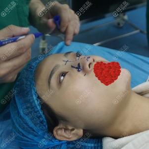 硅胶隆鼻手术前照片