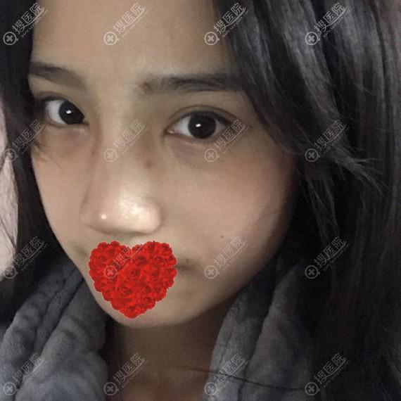 长沙星雅李雯硅胶隆鼻恢复10天