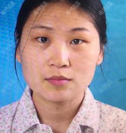 在北京美莱做双眼皮手术前