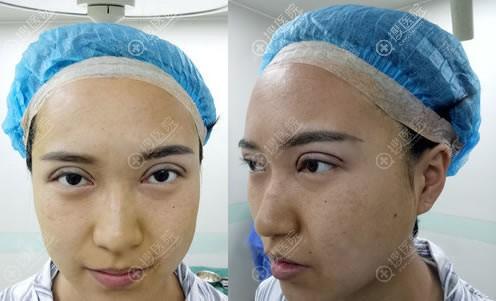 刚做完双眼皮修复的照片