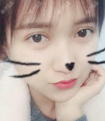 北京韩啸医院双眼皮修复案例