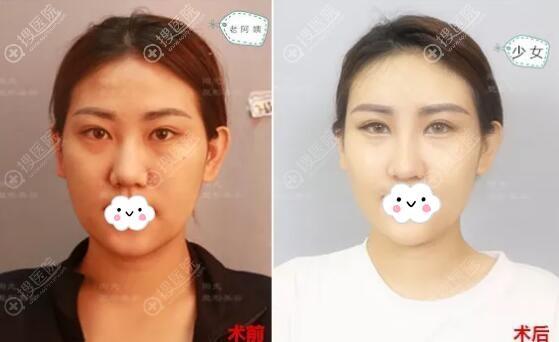 深圳阳光罗志敏鼻综合+脂肪丰面部术前术后对比