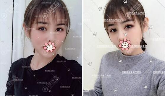深圳美加美李莉玻尿酸丰苹果肌术后效果