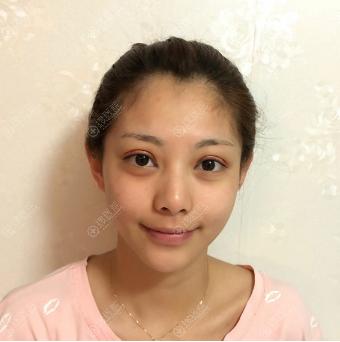 杭州美莱张霞飞双眼皮案例7天图片