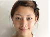 张霞飞不在杭州格莱美了,看我在杭州美莱找她做的双眼皮好看吗