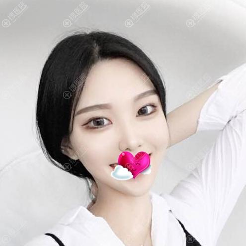 扬州美贝尔张成春注射瘦脸针一个月
