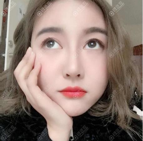 杭州美莱韩超主任隆鼻子案例