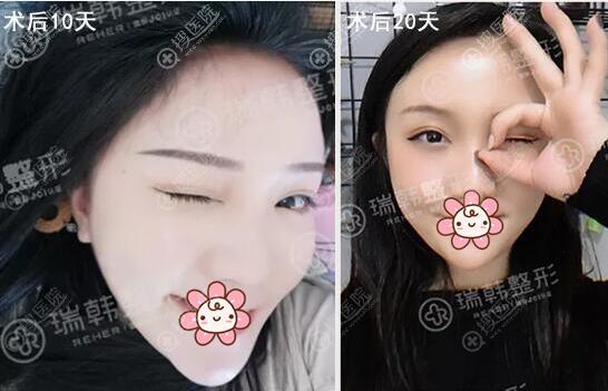 双眼皮术后恢复情况