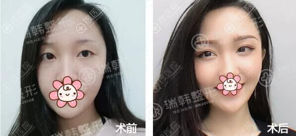 林晓燕双眼皮术后对比效果