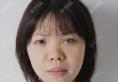 其实去贵阳美莱找刘照做肋软骨鼻综合隆鼻前我还考虑过贵阳华美